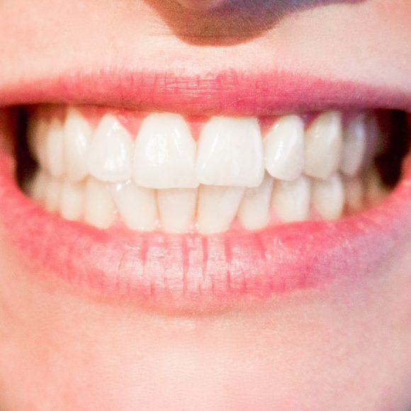 Kosmetische Zahnmedizin/Veneers