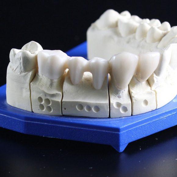 Zahnersatz aus dem Qualitätslabor
