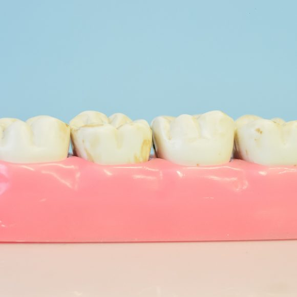 Parodontitis – Behandlung